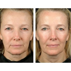 Безоперационная блефаропластика и круговая подтяжка лица, 2,5 часа